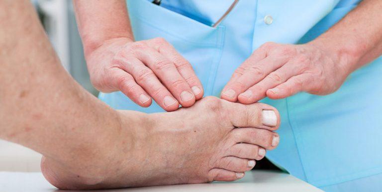 Alluce Valgo: sintomi, cause e rimedi principali