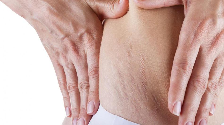 pelle più scura dopo la perdita di peso